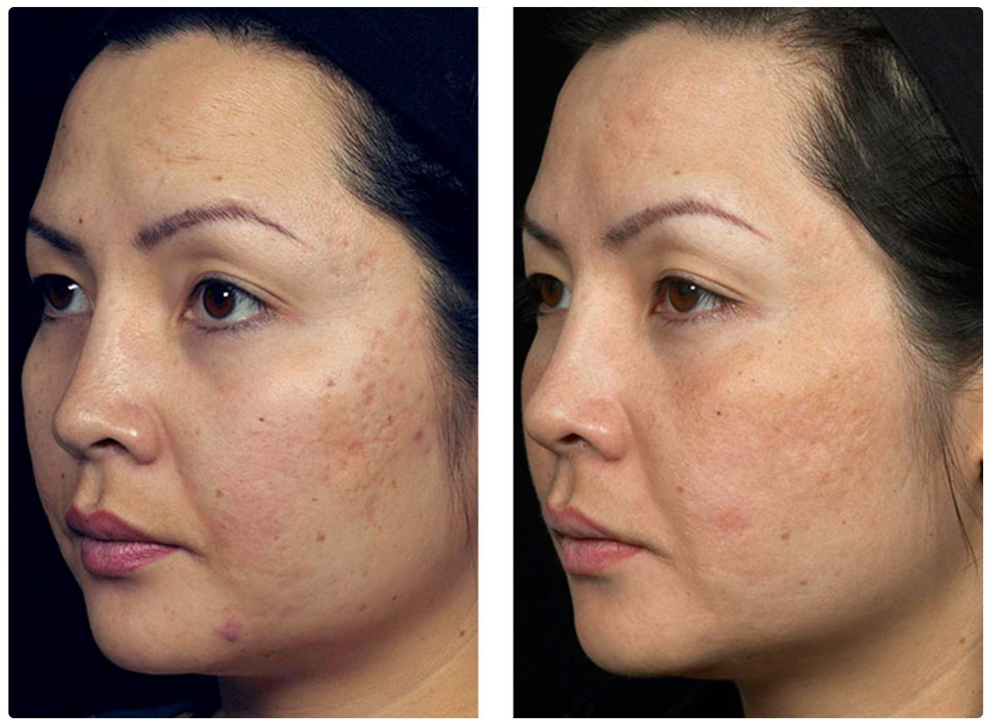 мезотерапия лица фото до и после отзывы черновая отделка позволит